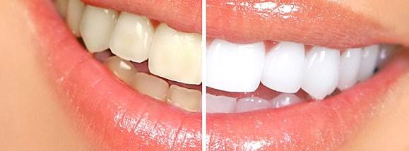 doğal diş macunu yapılışı
