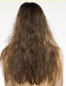 cansız saçlardan kurtulma yöntemleri