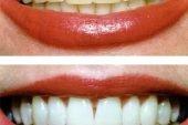 Diş teli Tedavisi ve Faydaları