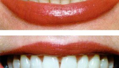 Doğal Yöntemlerle Diş Beyazlatma