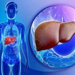 Karaciğer Yağlanması 5