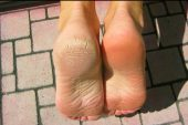 Topuk Çatlakları