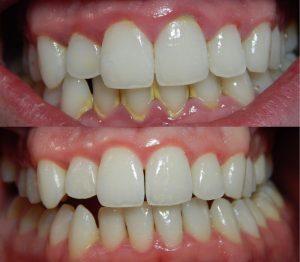 diş tartarı nasıl yok edilir