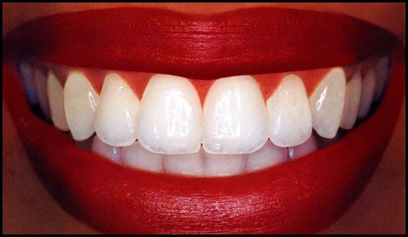 doğru diş bakımı nasıl olmalı