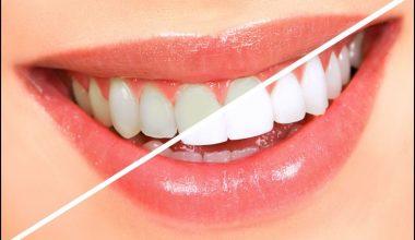 İnci Gibi Dişler İçin Diş Bakımı Nasıl Olmalı?